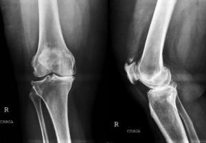 Лечение остеохондроза коленного сустава
