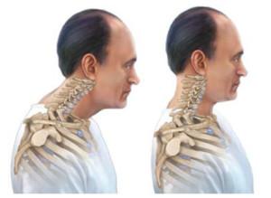 Физические упражнения при шейном остеохондрозе