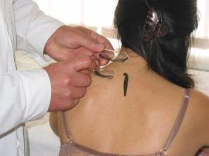 Лечение остеохондроза пиявками