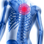 Признаки остеохондроза грудного отдела позвоночника