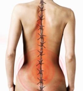 Как избавиться от остеохондроза шейного отдела