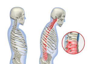 грудной остехондроз