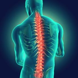 Болезненность остеохондроза