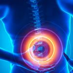 Причины и лечение остеохондроза