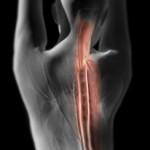 Количество больных остеохондрозом увеличилось в 21 веке