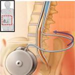 Интратекальное введение лекарств с помощью имплантационного насоса при остеохондрозе