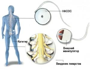 Введение препарата и элементы системы