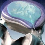 Чрескожная дисковая нуклеопластика при остеохондрозе