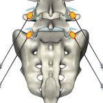 Поясничная радиочастотная невротомия при остеохондрозе