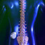 Стимулятор спинного мозга при остеохондрозе
