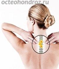 Причины грудного остеохондроза