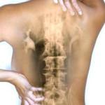 Симптомы остеохондроза грудной клетки