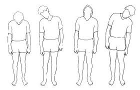 Зарядка при остеохондрозе шеи