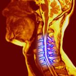 Чем опасен шейный остеохондроз