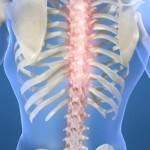 Симптомы и лечение при грудном остеохондрозе