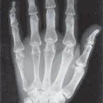Остеохондроз пальцев рук