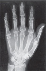 Рентген снимок пальцев рук