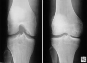 Остеохондроз 2 степени коленного сустава лечение суставов отвар лаврового листа