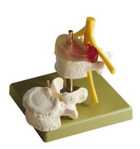 Визуализация остеохондроза шейного отдела