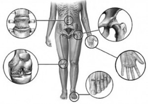 Больные суставы и позвоночник