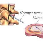 Внутридисковая электротермальная терапия при остеохондрозе
