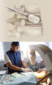 Процесс вертебропластики