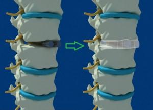 Сращение имплантатов
