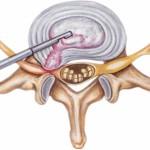 Декомпрессорная дискэктомия при остеохондрозе