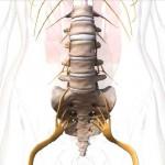 Дискэктомия при остеохондрозе