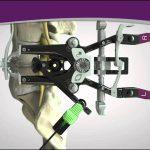 Корпэктомия при остеохондрозе